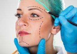 عمل کشیدن صورت یا لیفتینگ صورت چیست؟
